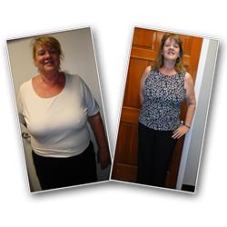 irvine weight loss success photo